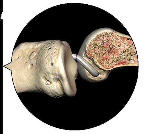 VirtaMed ArthroS™ ACL Reconstruction Training Simulator