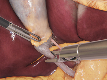 VirtaMed LaparoS™ cholecystectomy