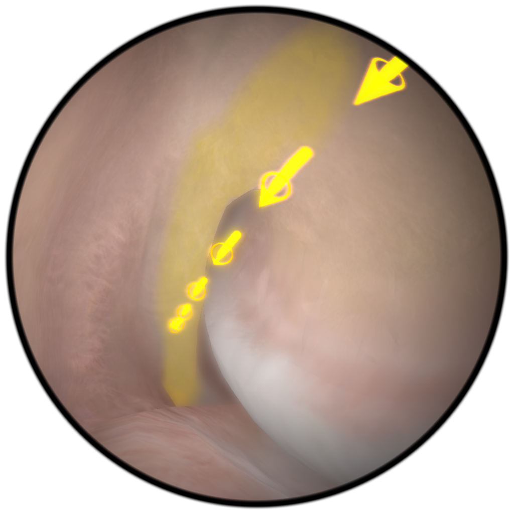 VirtaMed ArthroS™ Knee Arthroscopy Training Simulator