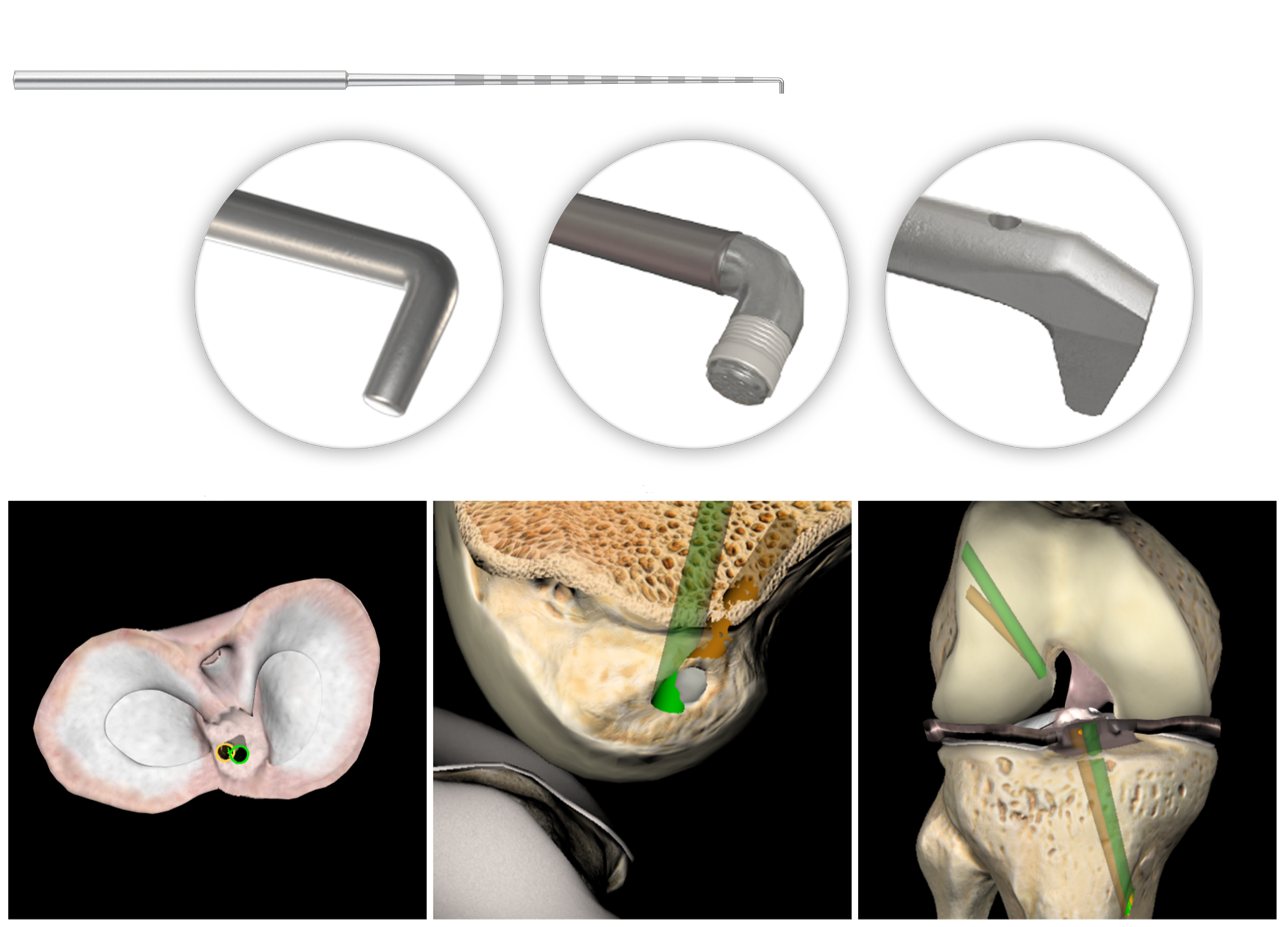 ArthroS ACL Reconstruction